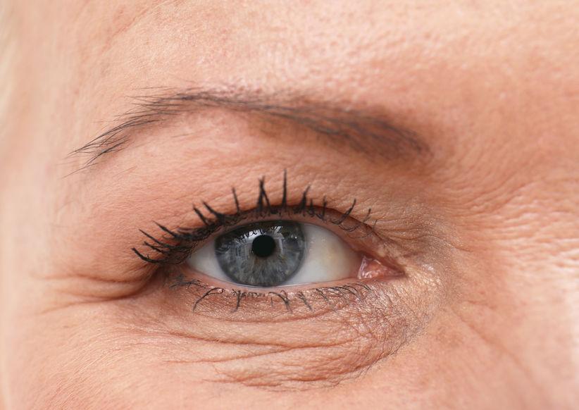 Blefaroplasti (Göz Kapağı Estetiği)