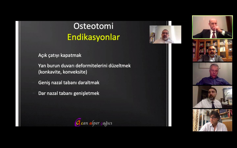 Can Alper Çağıcı'nın online olarak gerçekleştirdiği burun estetiği panelinin ekran görüntüsü